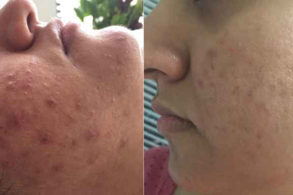 acne treatment results before and after