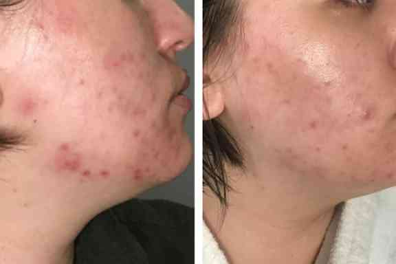 Acne treatment on girl face